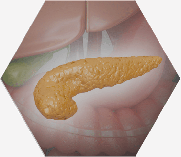 Entebella Medical insulin resistance patient education